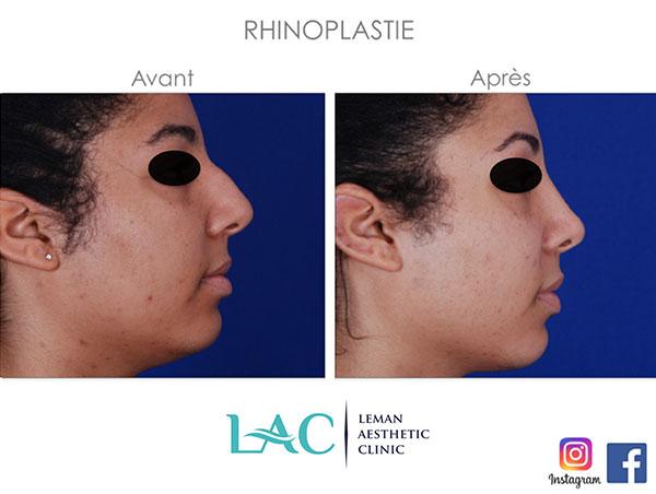 la rhinoplastie