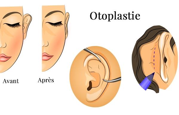l'intervention de l'otoplastie