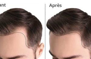 le résultat d'une greffe de cheveux